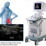 A deeper look into Real-time Ultrasound