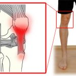 Patella tendinopathy- an alternate cause of knee pain