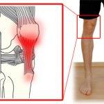 Patella tendinopathy- an alternate cause of knee pain