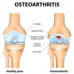 A Rheumatologist's perspective on treatment for knee OA