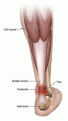 running injury physio