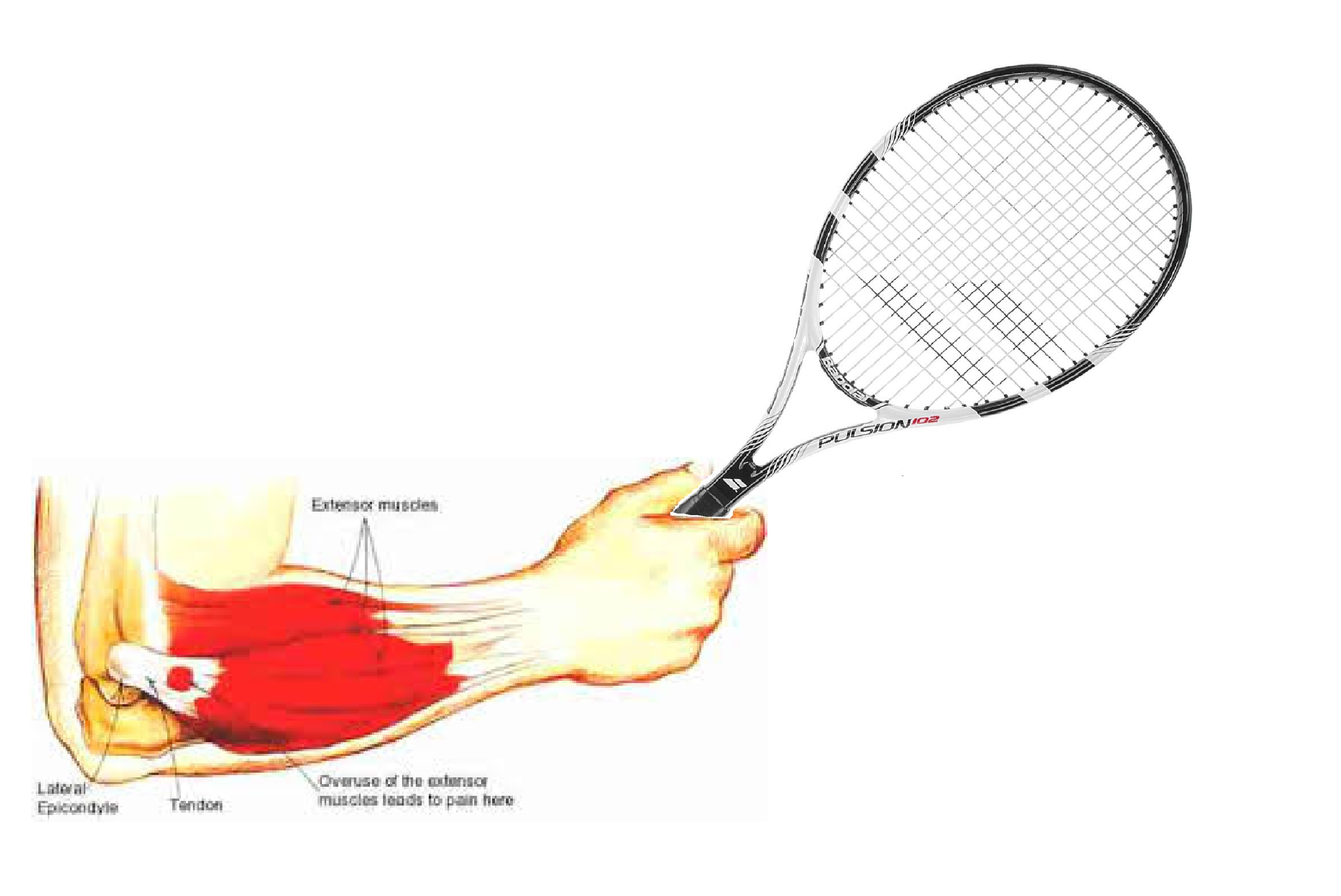 tennis elbow & what you should know | port melbourne physiotherapy
